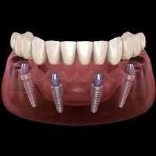 Implant hakkında bilmedikleriniz