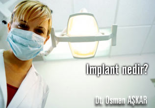 Implant hakkında merak ettikleriniz