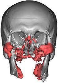 3D Baskı Yüz Protezlerinde Görüntü ve Tasarım Aşaması